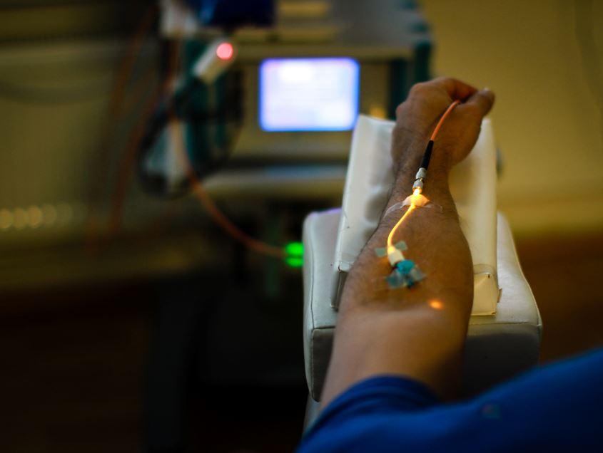 Lasertherapie-mit-Gelblaser